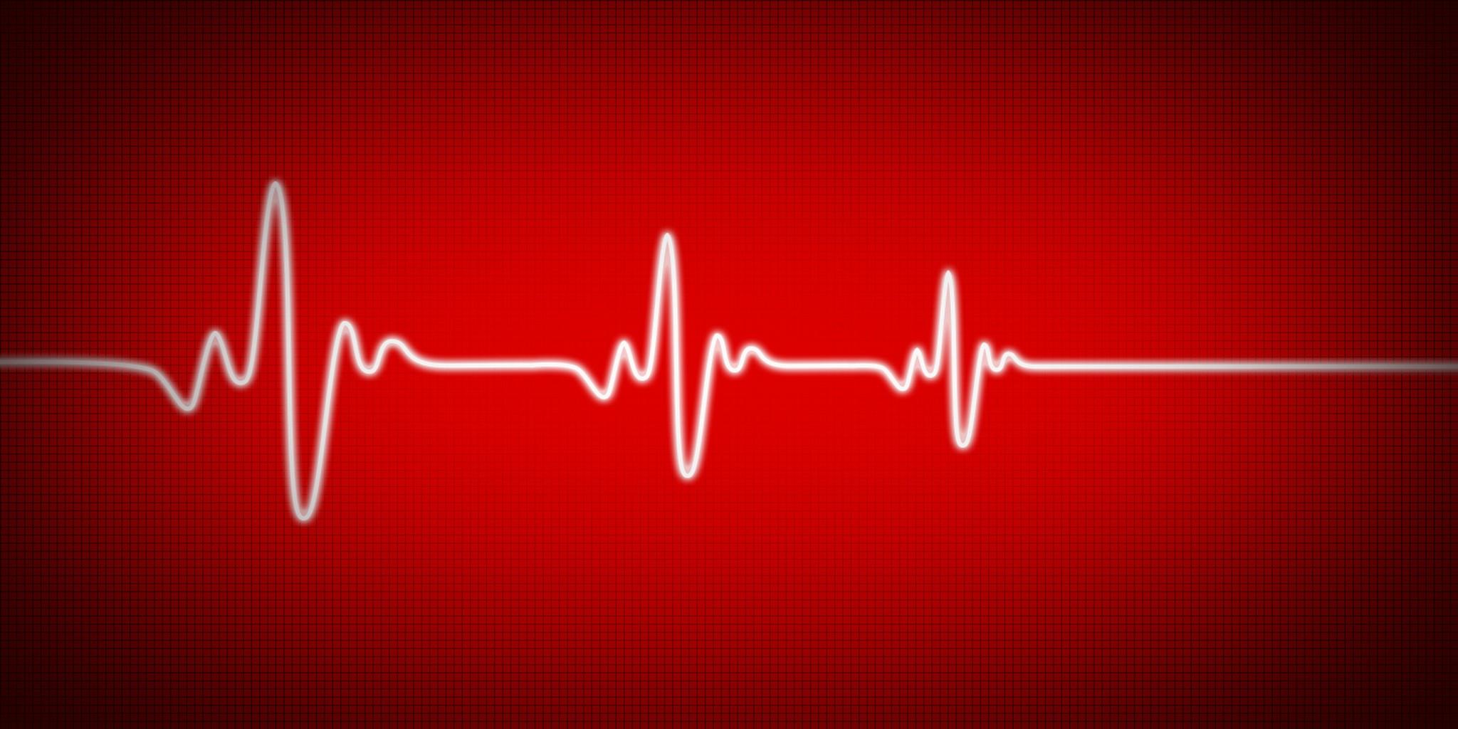 Heart monitor losing pulse